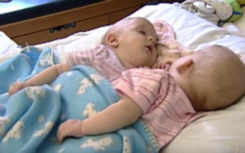 Вот как выросли сиамские близнецы, которых разделили еще в младенчестве